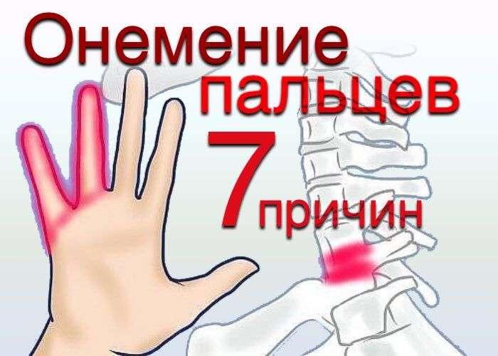 Как понять что руки немеют из-за остеохондроза а не из-за другого заболевания