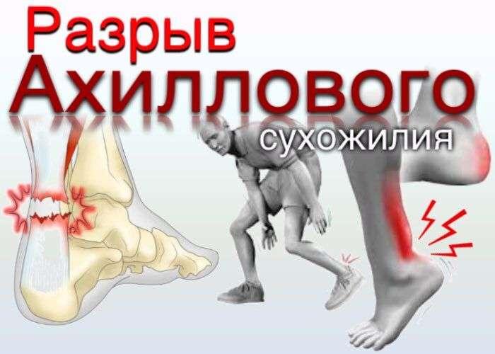 Растяжение ахиллова сухожилия и его опасные последствия