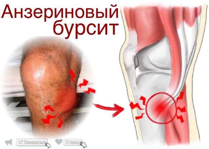Бурсит коленного сустава причины возникновения