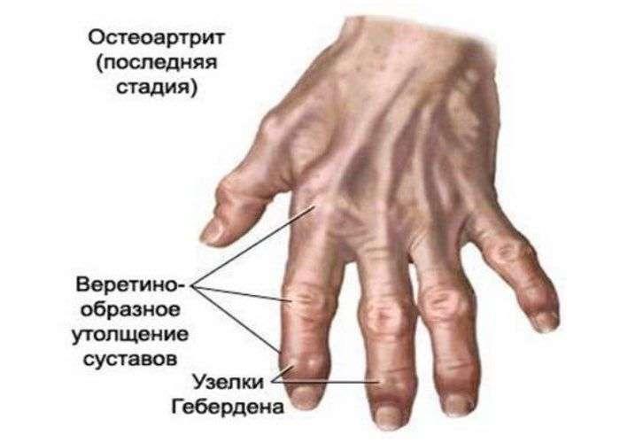 causas de artrose