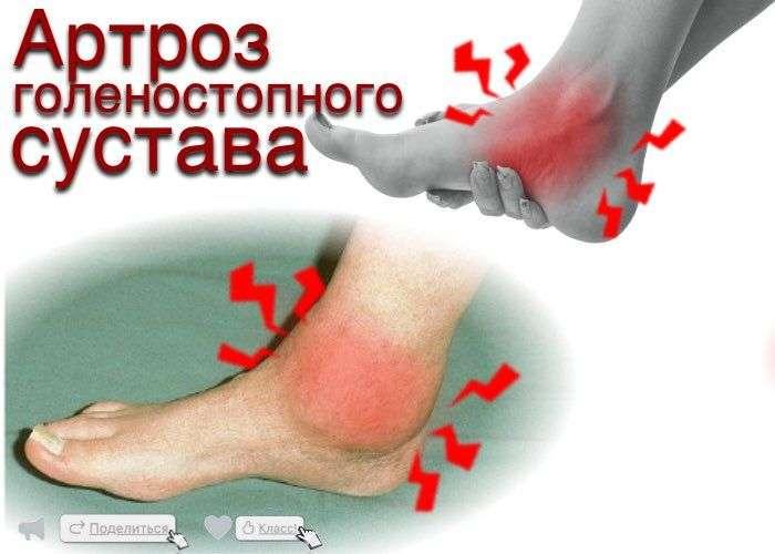 Дифференциальная диагностика голеностопного сустава упражнения лежа для спины и суставов