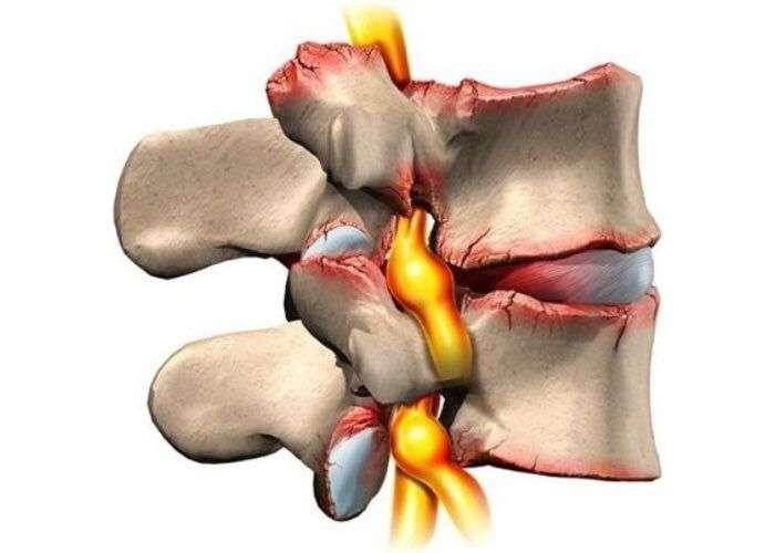артроза дугоотросчатых суставов
