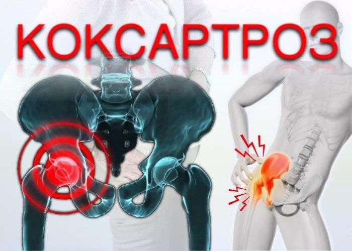 Артрит тазобедренного сустава - симптомы и лечение