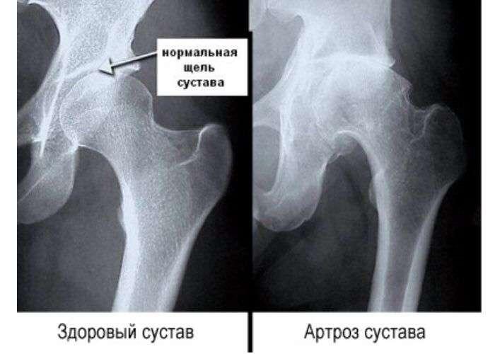 Артроз тазобедренного сустава - симптомы признаки и лечение