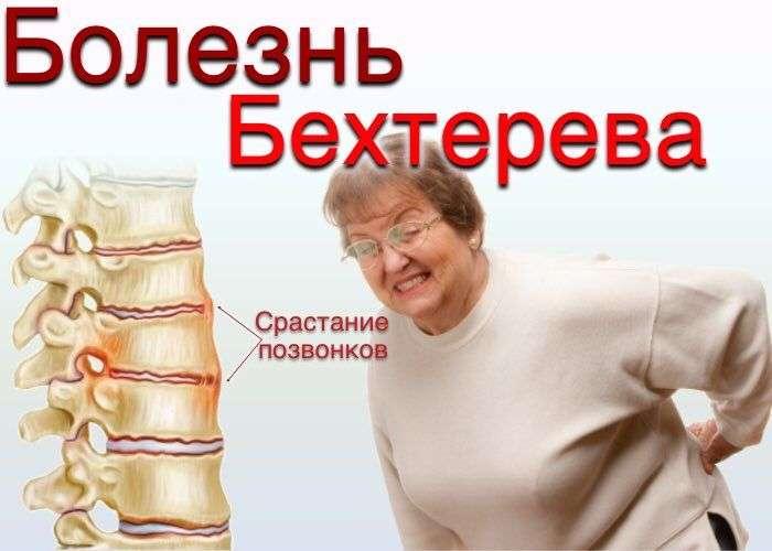 artropaticheskiy-psoriaz-i-spondiloartrit