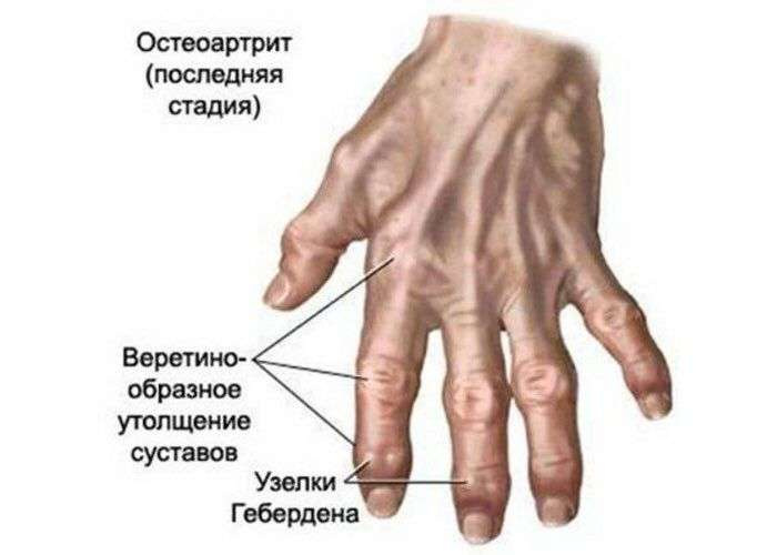 Основные причины боли суставов пальцев рук