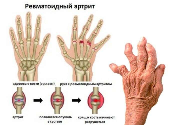 Ревматоидный артрит чем лечить в домашних условиях 100