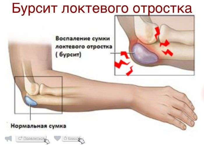 Свищ в локтевом суставе как лечить дисплазия коленного сустава у взрослых лечение