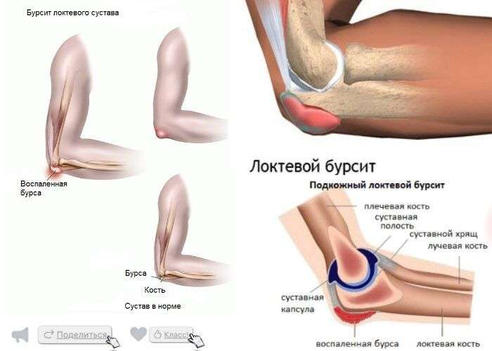 Как лечить локтевые суставы рук в домашних условиях