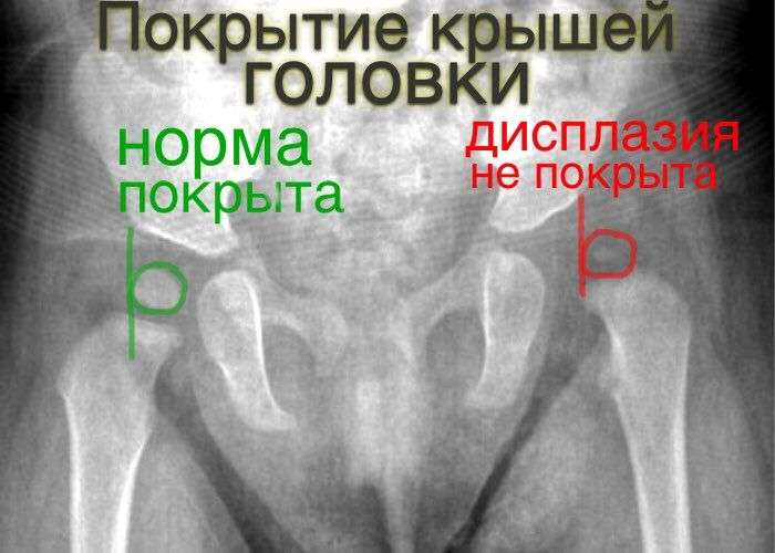 Дисплазия тазобедренных суставов в 3 года тренажеры для увеличения силы и объема движений в суставах конечностей