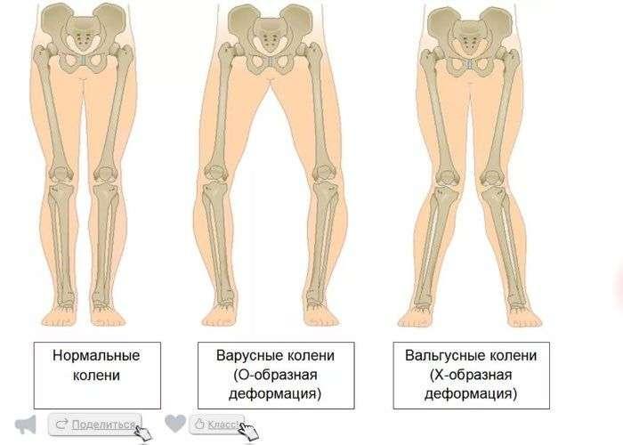 Дисплазия коленного сустава замена тазобедренного сустава отзывы железнодорожная больница города красноярска