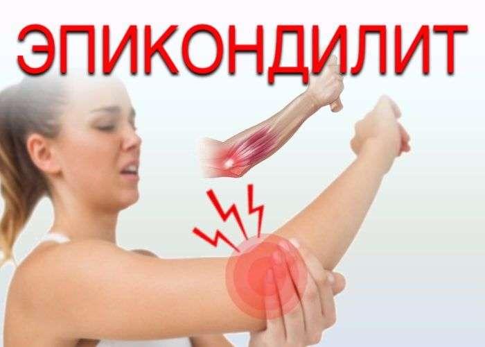 Эпикондилит локтевого сустава симптомы и лечение медиальный латеральный мази