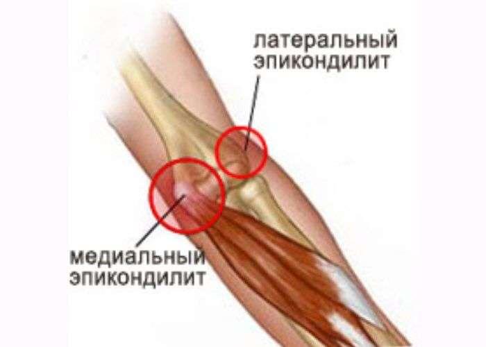 Форум как лечить эпикондилит локтевого сустава