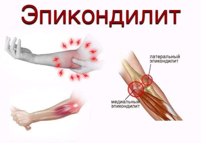 Медиальный эпикондилит локтевого сустава фото искуственный тазобедренный сустав