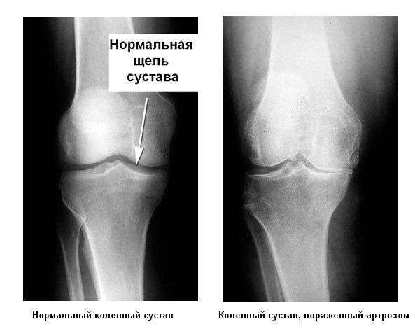 Артроз коленного сустава гонартроз чем лечить доброкачественная опухоль суставов кисти