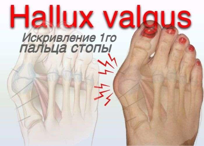 Hallux Valgus. Вальгусное искривление 1го пальца стопы
