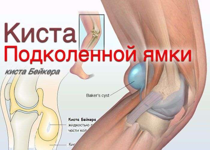 кисту бейкера коленного сустава как лучше лечить обслуживание городского