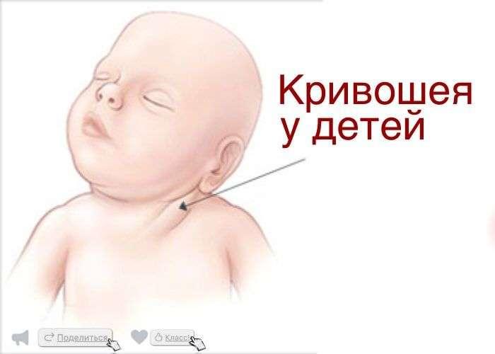 Приобретенная кривошея у детей причины