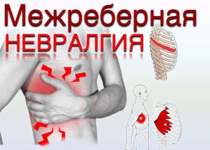 Симптомы межреберную невралгию в домашних условиях 916