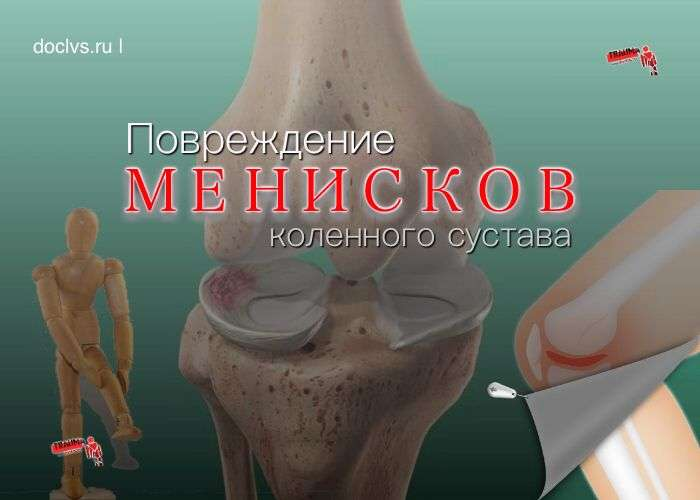 Повреждение менисков коленного сустава
