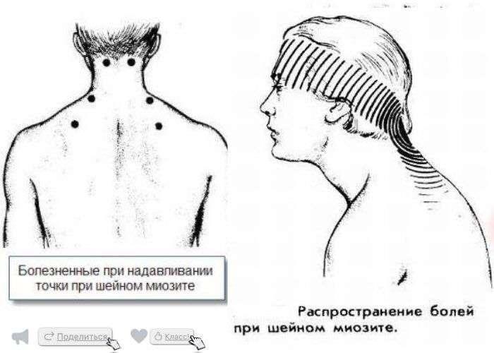 doclvs.ru | Шейный миозит: причины, симптомы, диагностика, лечение