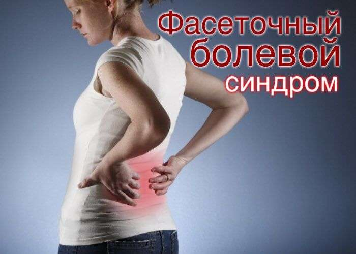 фасеточный болевой синдром