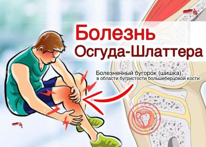 болезнь Осгуд-Шляттера