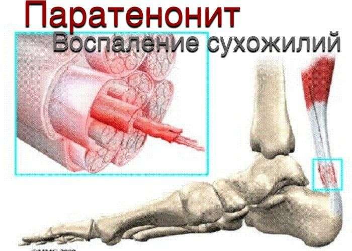 Заболевания соединительнотканных образований мышц