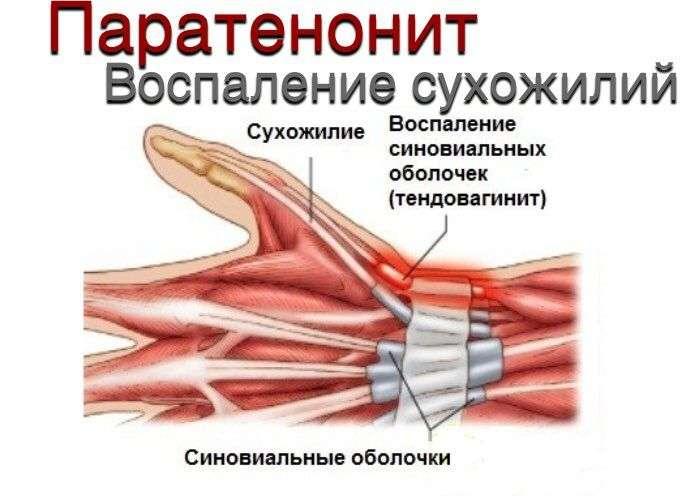 Паратенонит сгибателей в локтевом суставе лечение хламидиоза при поражении суставов