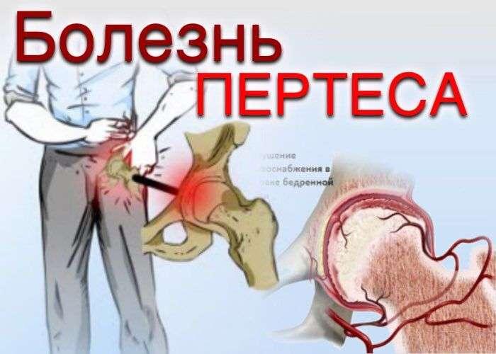 Болезнь Пертеса. Остеохондропатия головки бедренной кости