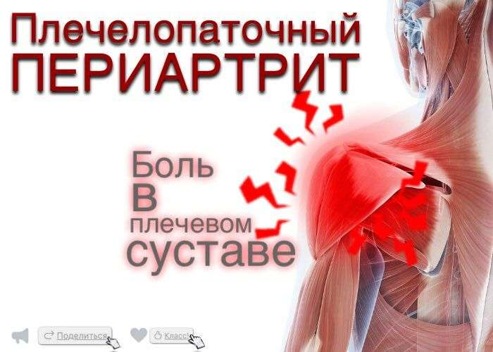 плече-лопаточный периартрит