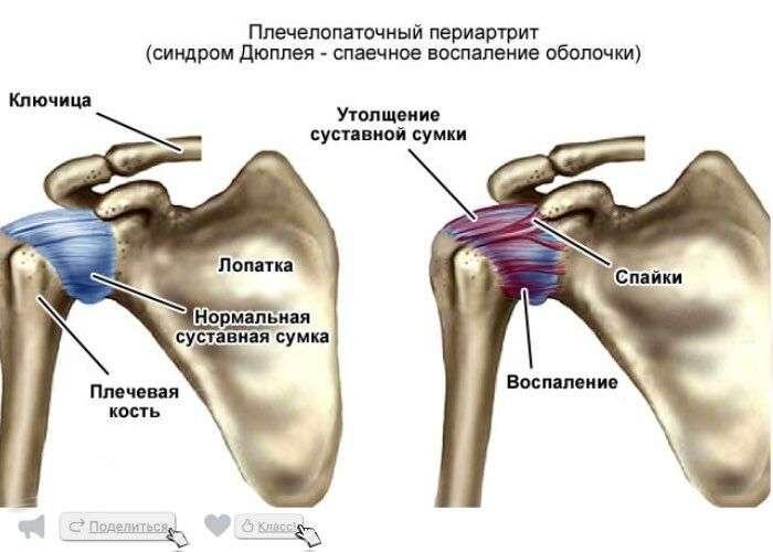 Периартрит плечевого-локтевого сустава перстнечерпаловидный сустав фото