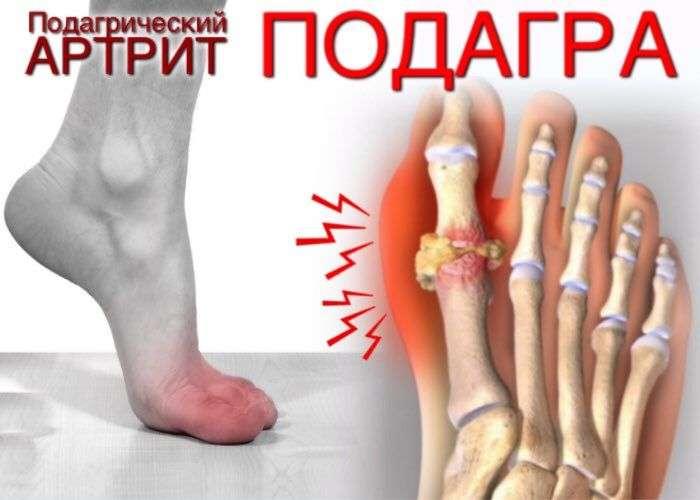 Артрит что это такое симптомы причины степени первые признаки и лечение