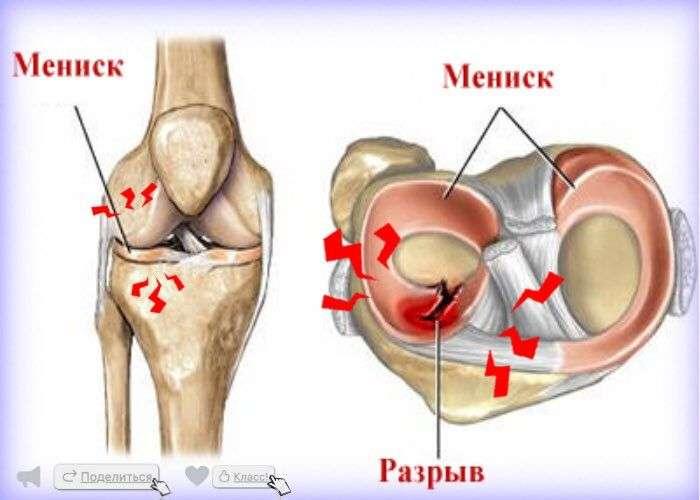 повреждение мениска коленного сустава восстановление