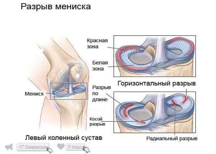 повреждение мениска коленного сустава по мкб