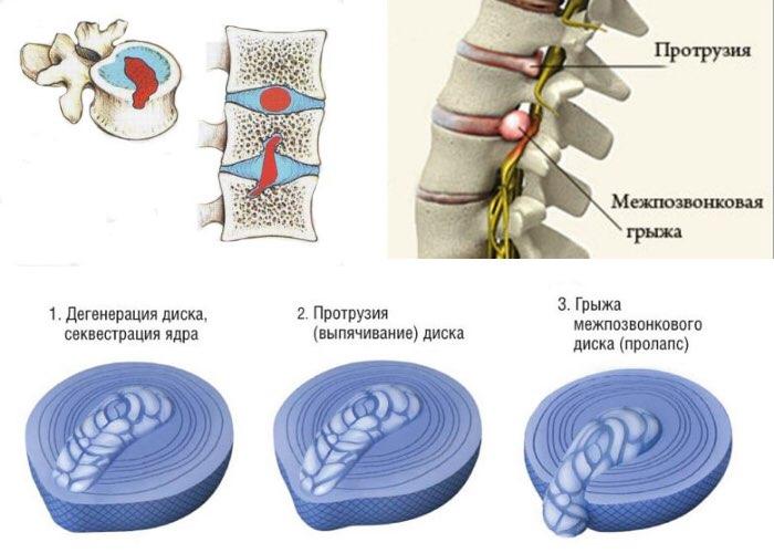 Грыжа межпозвоночного диска шморля