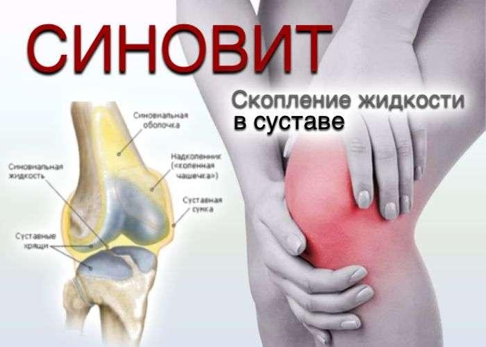 Синовиальная оболочка суставной хрящ и т д признаки заболевания болезненность народная медицина при суставах
