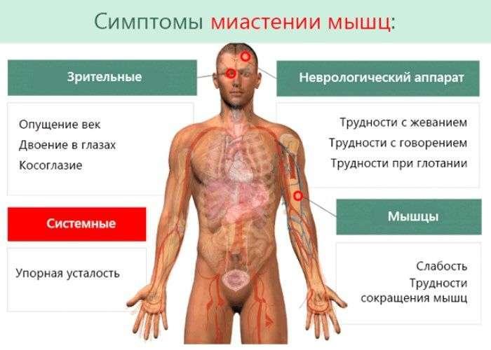 боль в суставах при ботулизме