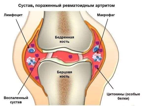 Ревматизм суставной киста бехтерева-лечение на суставе