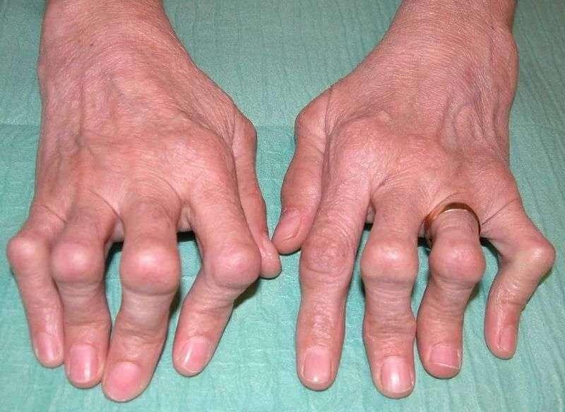 Суставной ревматизм причины что такое доа локтевого сустава 1 степени