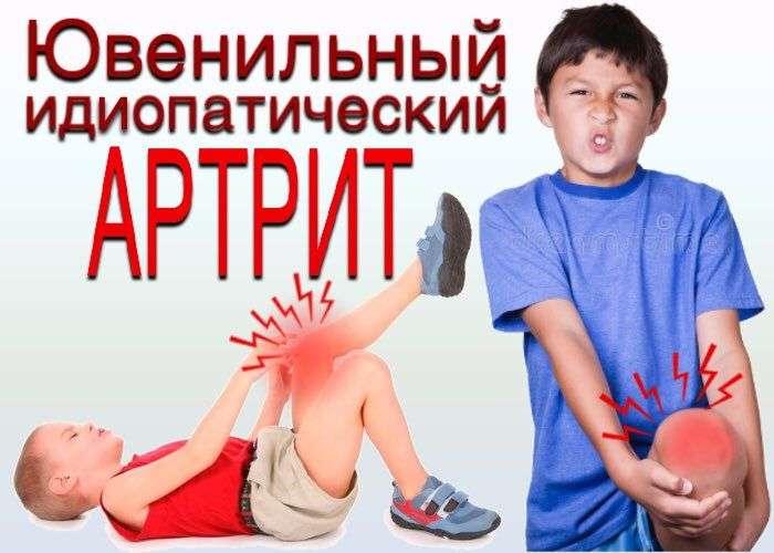 ювенильный идиопатичесий артрит