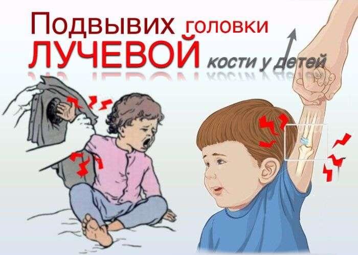 Подвывих  головки  лучевой  кости  (у детей)