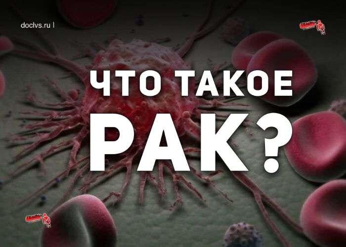 Что такое рак? Доброкачественная и злокачественная опухоль в чем разница?