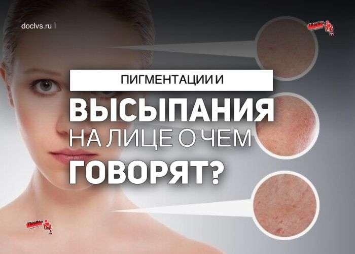 Болезни на лице: пигментации и высыпания о чем говорят?