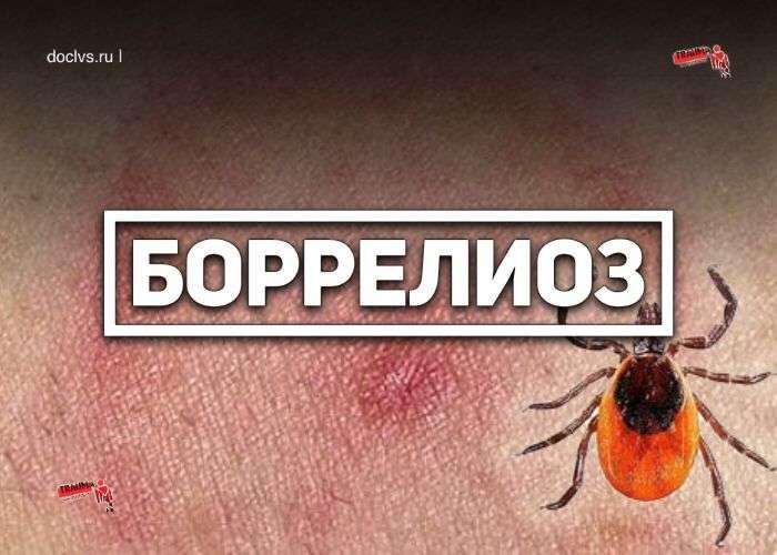 Боррелиоз (болезнь Лайма, клещевой сифилис)
