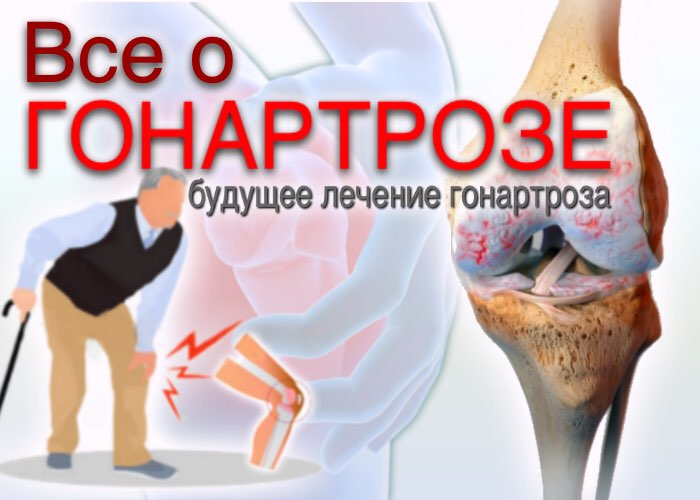 ГОНАРТРОЗ и сходные с ним клинические состояния