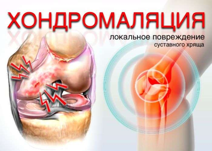 Хрящ коленного сустава норма лечение травами мыщелка локтевого сустава