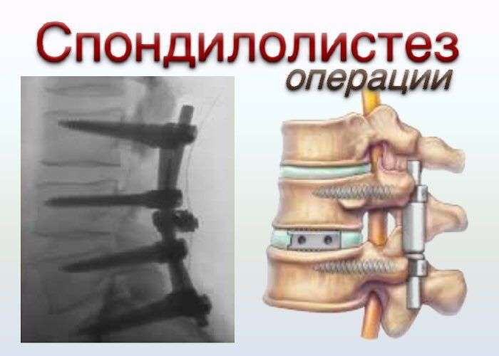 unstable spondylolthesis Fusion is necessary to stabilize the unstable spondylolisthesis the fusion is performed via inserting spinal instrumentation, screws and cages.