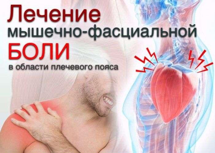 Лечение мышечно-фасциальной боли в области плечевого пояса