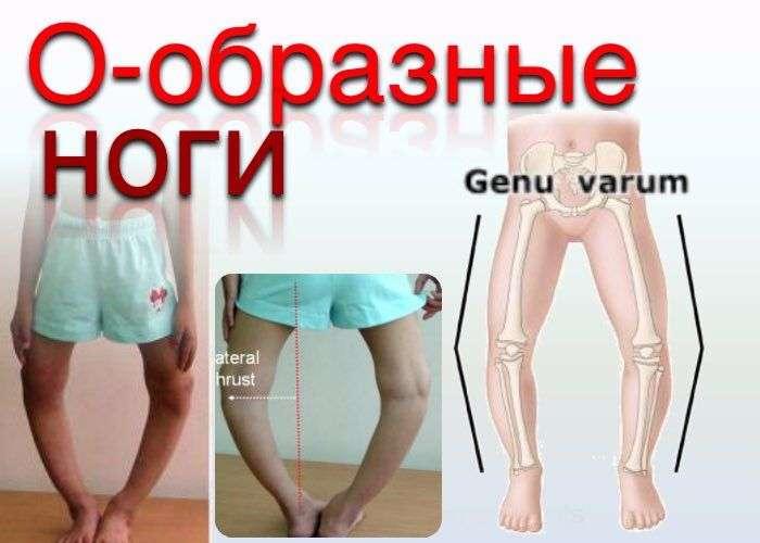 О-образные ноги (Genu varum)